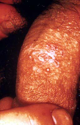 what do herpes look like in males