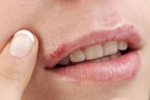 Cold Sore Image of Herpes
