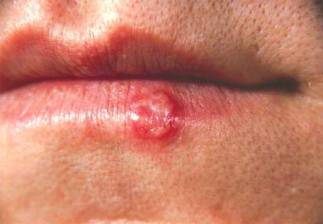 Herpes in Mouth Symptoms