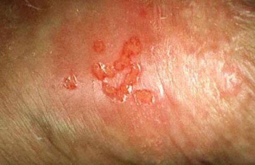 early signs of herpes breakout