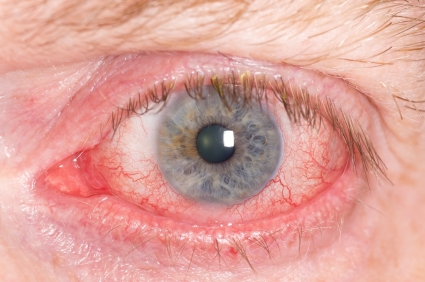 Ocular Herpes Symptoms
