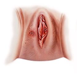 Female Genital Herpes Early Outbreak