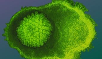 What Causes Herpes: Herpes Simplex Virus
